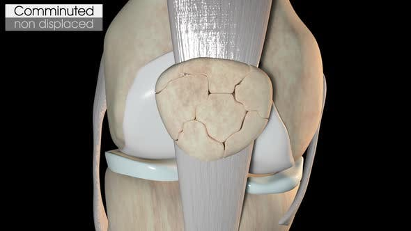 Patella Fracture Comminuted Non Displaced by madi7779   VideoHive